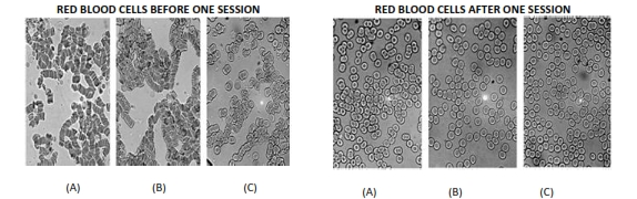 NLT-Blood-Cell-Before-After_001